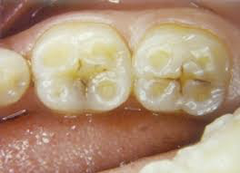Tooth Wear Damage, Tooth Wear, Martin Vale Dentistry, Martin Vale Dentistry