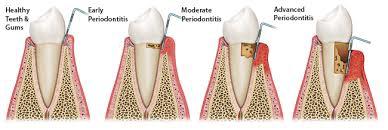 Gum Disease Bendigo, Gum Disease, Martin Vale Dentistry, Martin Vale Dentistry