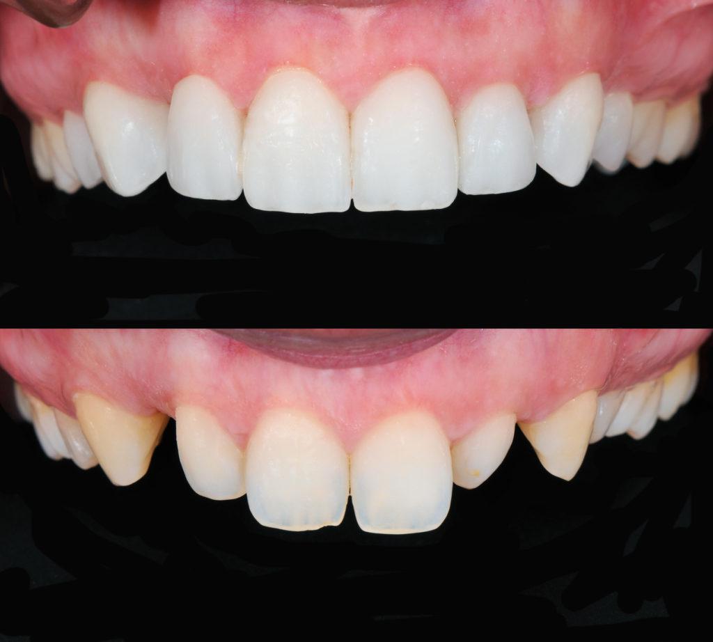 Composite porcelain veneers, Veneers, Martin Vale Dentistry, Martin Vale Dentistry